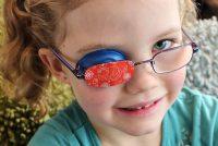 óculosparaestrabismo2